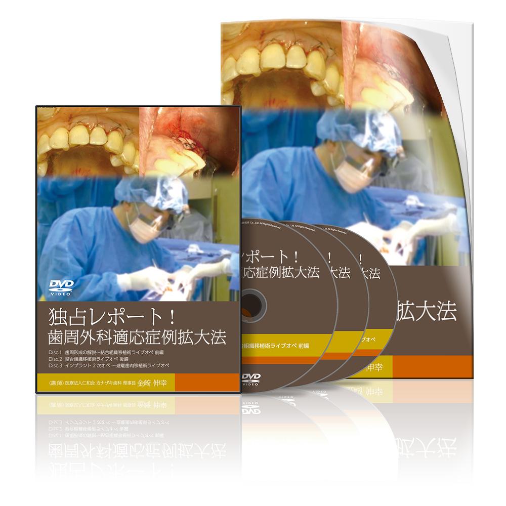 独占レポート!歯周外科適応症例拡大法