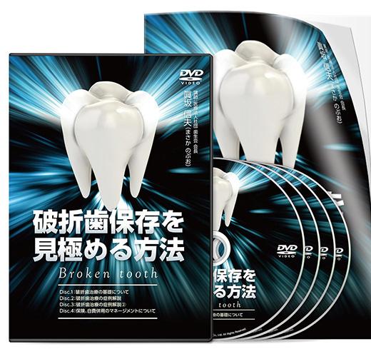 破折歯保存を見極める方法