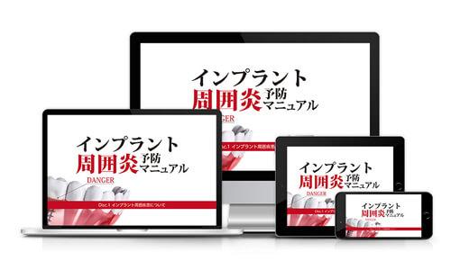 インプラント周囲炎 予防マニュアル│医療情報研究所DVD