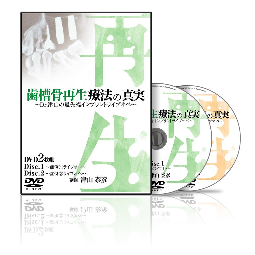 歯槽骨再生療法の真実〜Dr.津山の最先端インプラントライブオペ〜